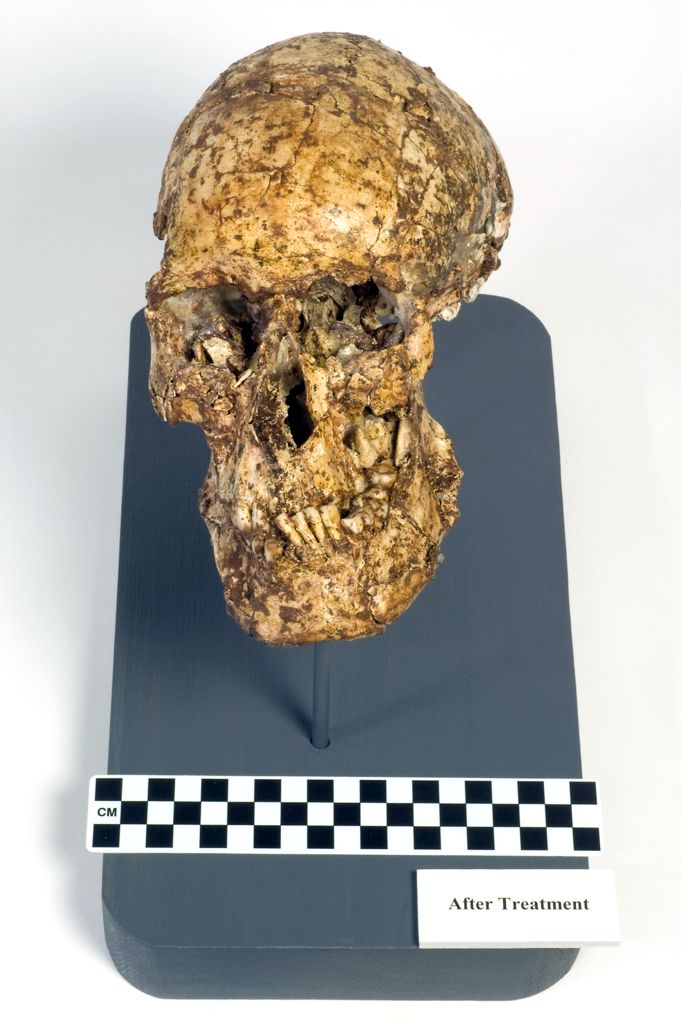 Skull and right forearm from the skeleton of a young man