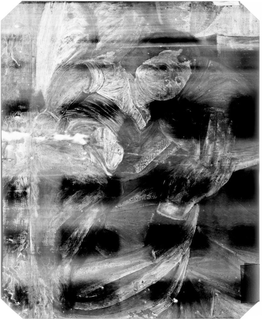 X-Radiograph(S)