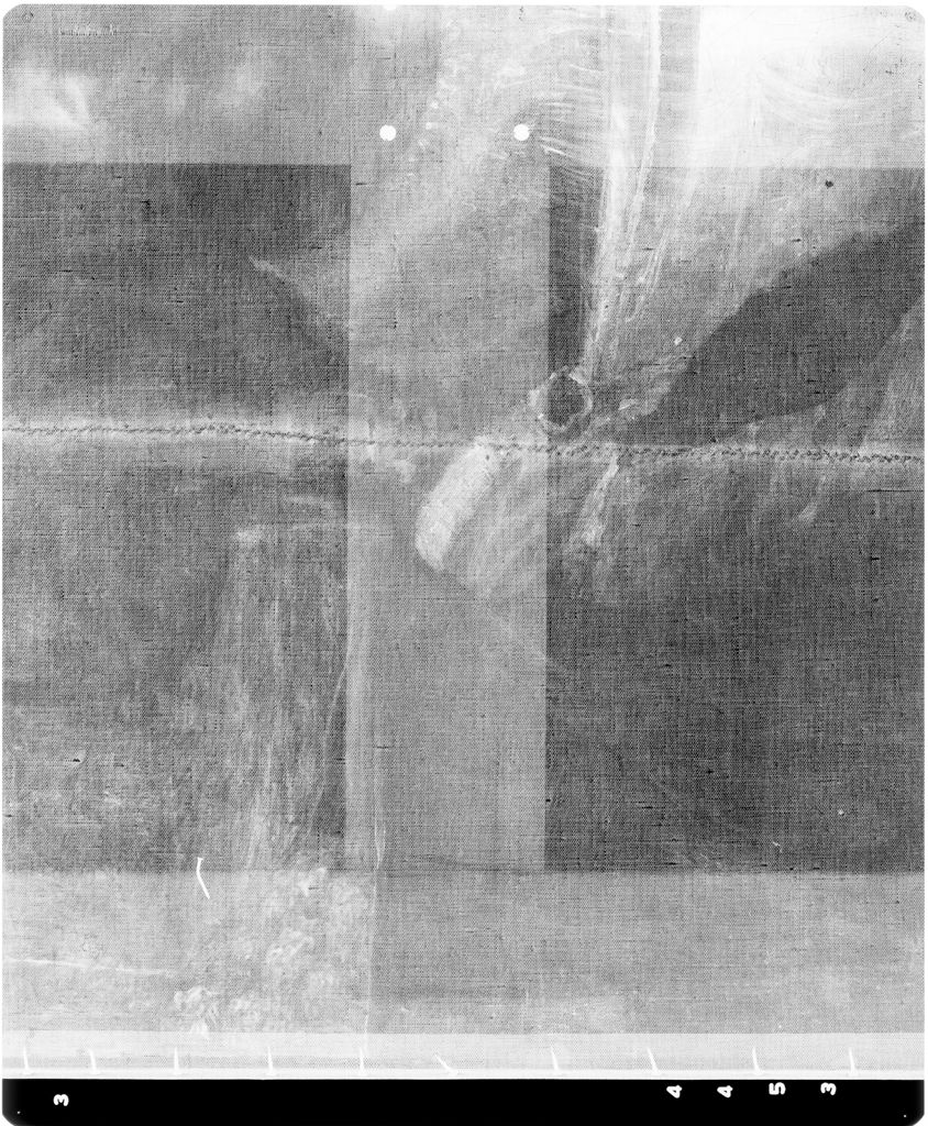 X-Radiograph(S) Of